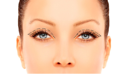 dr-parpados-Sitio-Upper-Blepharoplasty-interna
