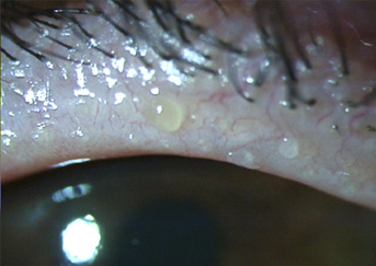 eyelash-disease-343x243