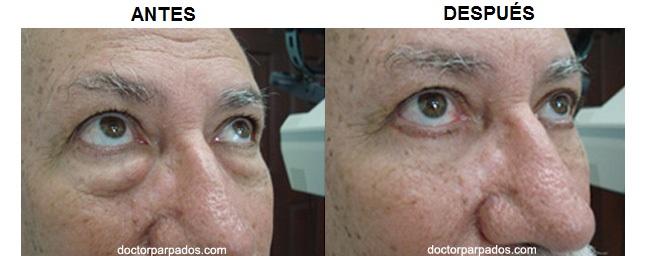 Blefaroplastía Párpados Inferior - Costa Rica, Cirugía, Doctor, Ojo ...