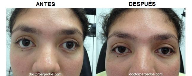El saco y la rubefacción alrededor del ojo