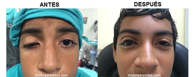 La crema alrededor de los ojos de las primeras arrugas