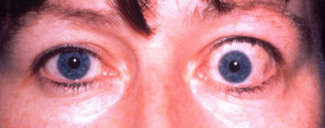 Thyroid-eye2-647x256