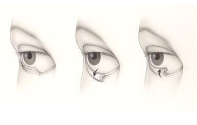 dr-parpados-Sitio-Recons-Eyelid-Malposition-Ectropion