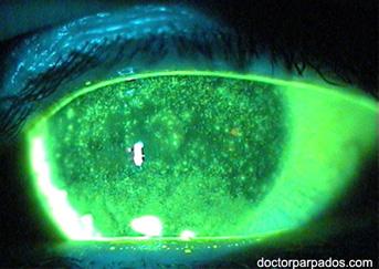 dry-eye3-343x243