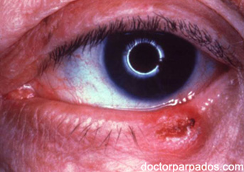 eyelid-cancer2-343x243