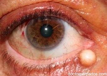 cystic-lesio1-343x243