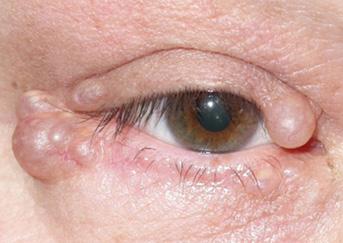 cystic-lesio4-343x243