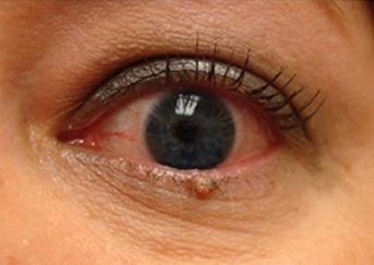 eyelid-wart1-343x243