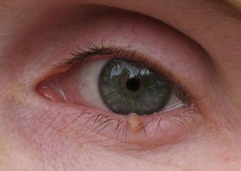 eyelid-wart4-343x243