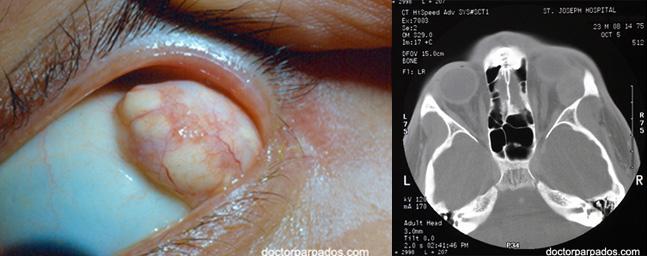 orbital-tumor1-647x256
