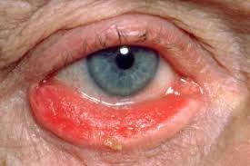 Ectropión es una condición médica en la que el párpado evierte lejos del ojo, causando enrojecimiento, lagrimeo y disconfort ocular.  Si no es tratado adecuadamente, puede comprometer la visión.