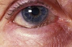 Ejemplo de entropión de párpado.  Se evidencia que el párpado se enrolla contra el globo ocular, causando síntomas de irritación ocular, lagrimeo y enrojecimiento del ojo afectado.